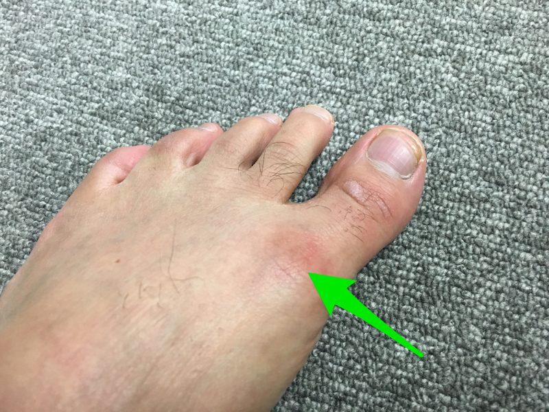 足 の 親指 しびれる